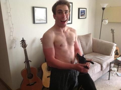 My buddy Greg forgot to put suncreen on.
